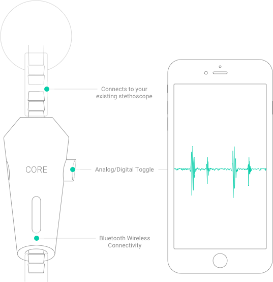 The Eko Core Digital Stethoscope