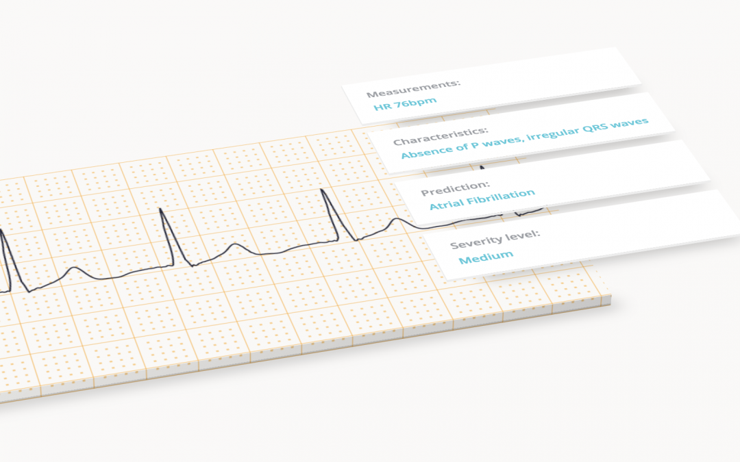 Cardilog (cloud-based platform for ECG analysis)