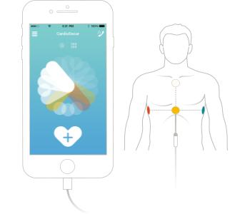 CardioSecur (ECG)