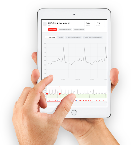 Cardiomatics (cloud-based platform for ECG analysis)